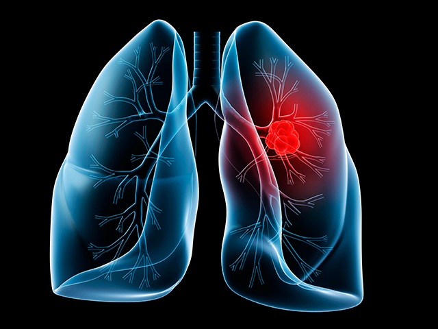 LungCancerScreening