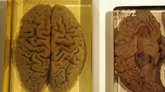 Missing brains mistery solved by University of Texas1