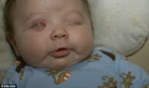 baby born without eyeballs