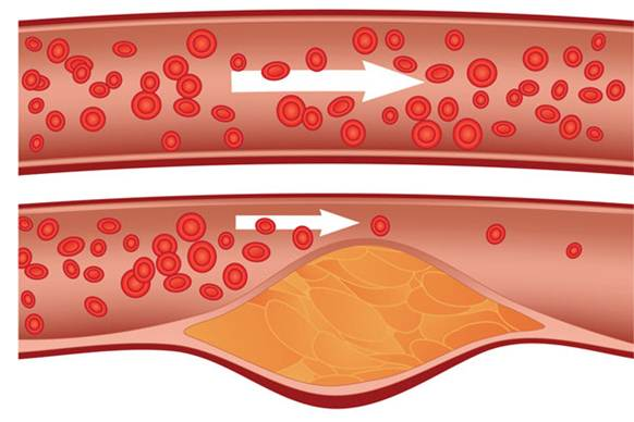 cholesterol reducing drug alirocumab successfully passed ODYSSEY trials