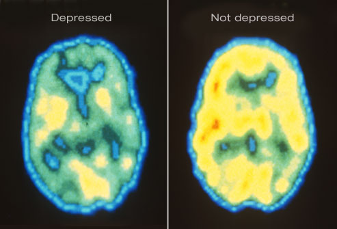 depression to brain inflammation