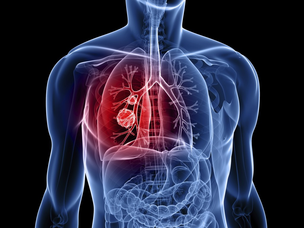 Medicare to Pay for Smokers' Lung Cancer Annual Screening