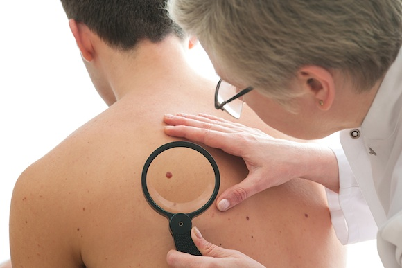 "alt=""dermatologist examines a mole of male patient"""