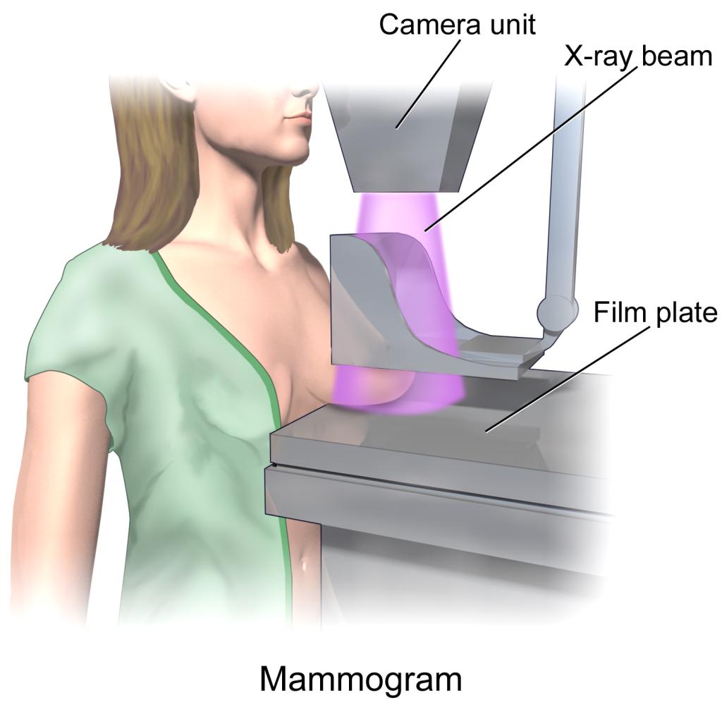 """mammography"""