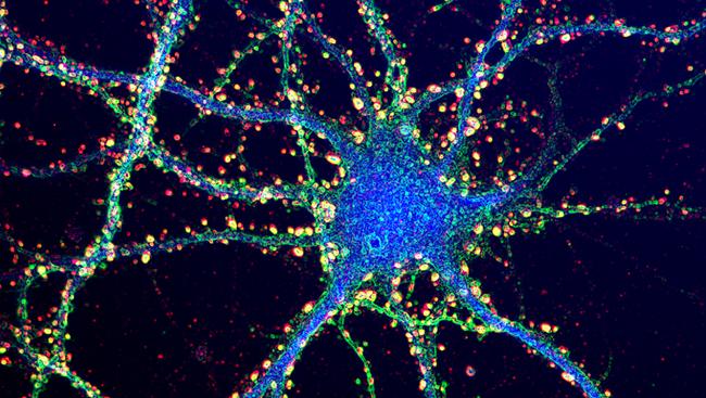 """alt=""""Brain Synapses"""""""