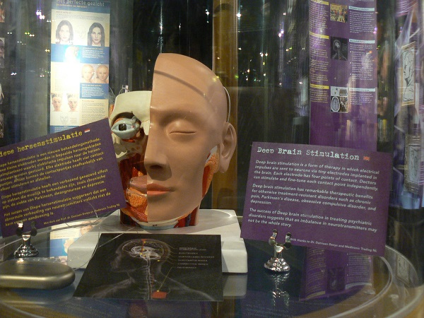 brain stimulation presentation