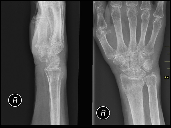 new guidelines for x-rays