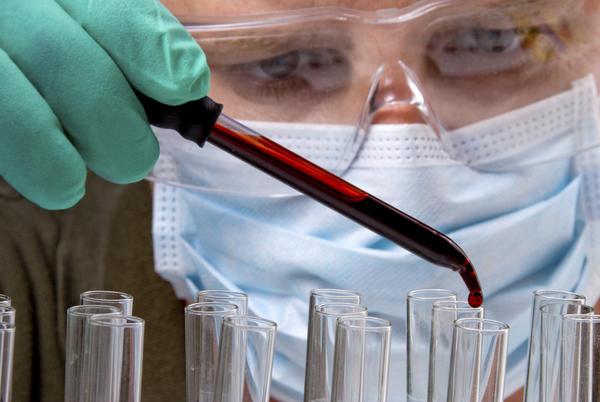 HIV_test