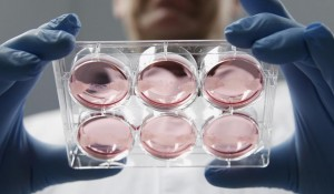 Missing vaginas replaced with lab grown reproductive organs in four women