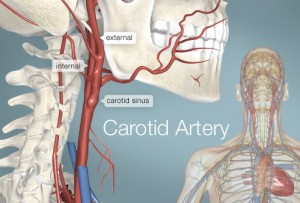 Carotid Artery Disease Effects Nervous System Causes Memory loss