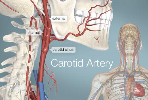 493x335_carotid_artery