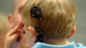 Cochlear implant through gene therapy may treat auditory problems
