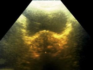 FDA nod to Eli Lilly's angiogenesis inhibitor Cyramza to treat stomach cancers in advance stage
