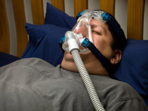 Sleep Apnea results in stroke