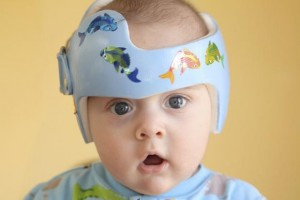 Skull helmet therapy to avoid Flat Head Syndrome in babies not Recommended
