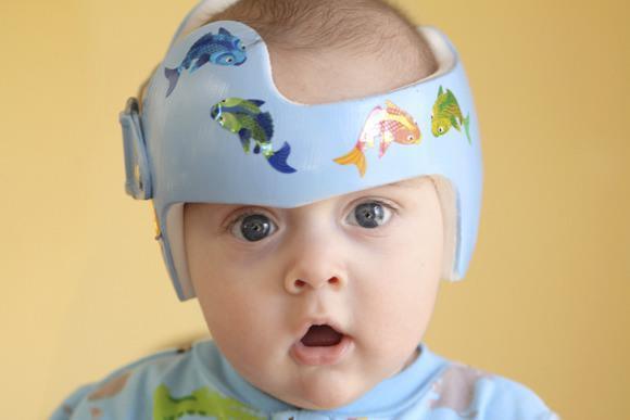 baby-flat-head