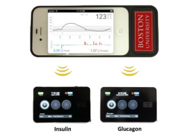 Development Of Bionic Pancreas' for Diabetics In Progress