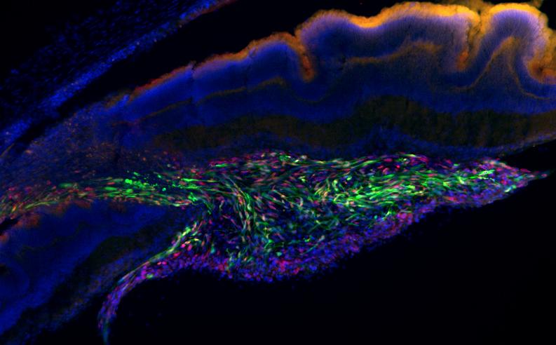 eye retina stemm cells
