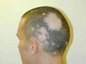 Cancer Drug Reverses Baldness