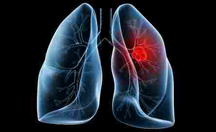 lung cancer can lie dormant