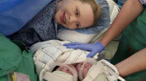 Conjoined Twins Born in Atlanta Doing Fine So Far