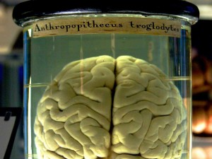 Missing brains mistery solved by University of Texas