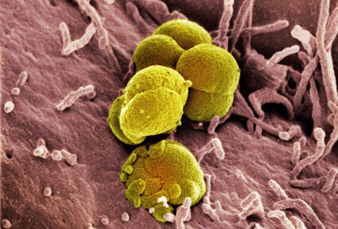 Gonorrhea Cases in South Dakota