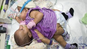 Conjoined Twins Separated After 26-hour Long Surgery