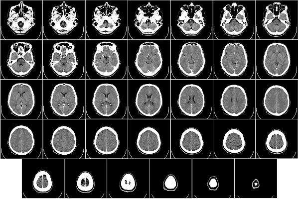 single brain scan