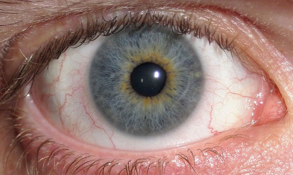 Eyeball with heterochromia